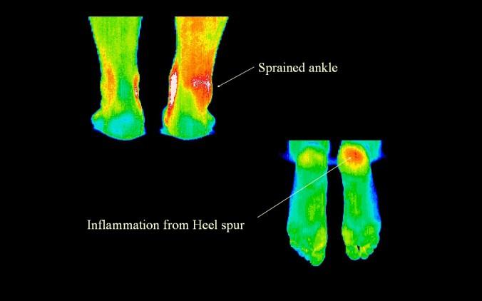 AnkleSprain-HeelSpur