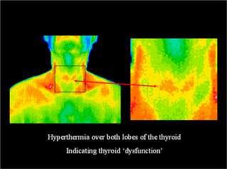Thyroid-Condition